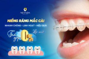 Niềng răng mắc cài – nhanh chóng – linh hoạt – hiệu quả – trả góp lãi suất 0%-EN