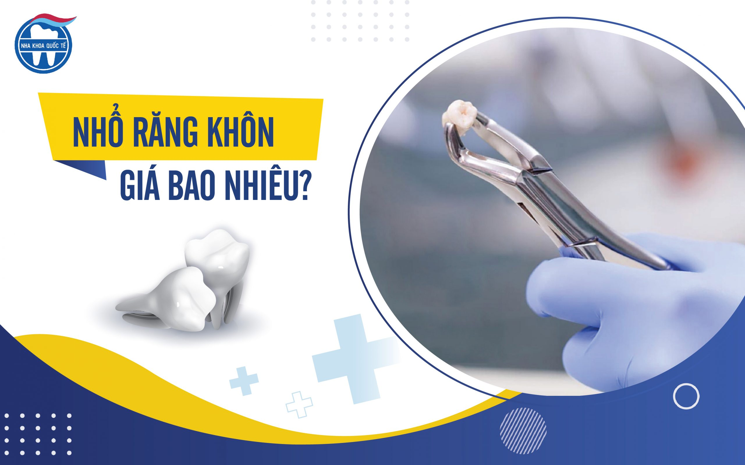 Nhổ răng khôn giá bao nhiêu?