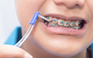 Chuyên gia khuyến cáo 7 điều nhất định phải biết nếu muốn niềng răng!