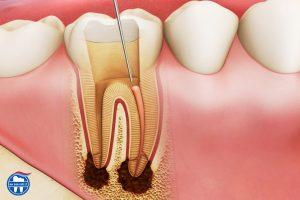 Viêm tủy răng ảnh hưởng như thế nào?
