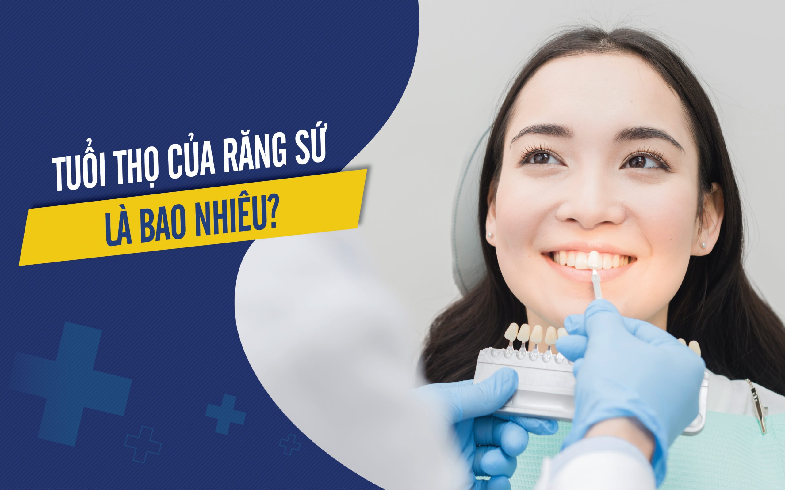 Tuổi thọ của răng sứ là bao lâu?