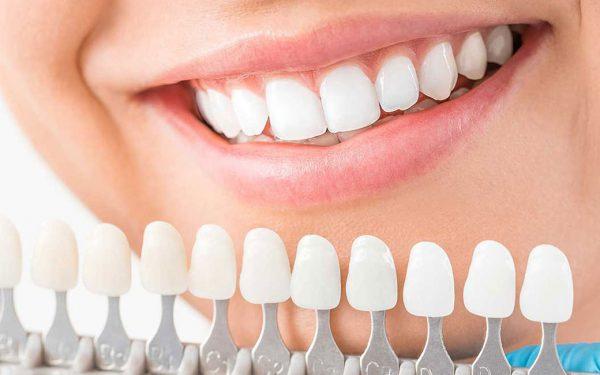 Muốn có hàm răng sứ đều đẹp, nhất định cần nhớ kỹ 4 lưu ý sau!